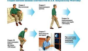 Перемежающаяся хромота – лечение, симптомы, народные средства. Лечение перемежающейся хромоты