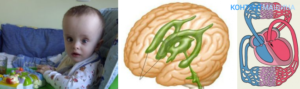 Умеренная дилатация левого бокового желудочка мозга. Расширение желудочков головного мозга у грудничка