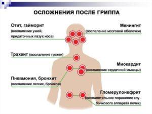 После орви низкое давление. Давление во время и после гриппа