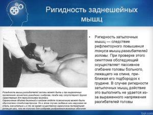 Ригидность мышц - причины, симптомы и лечение. Что такое ригидность мышц