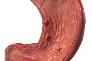 Эрозивно язвенные поражения желудочно кишечного тракта. Эрозия желудка — поражение слизистой оболочки с опасными последствиями