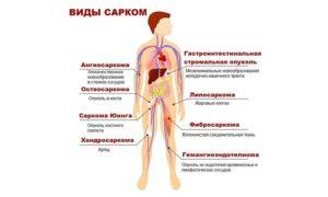 Саркома ремиссия. Чем рак отличается от саркомы? Причины возникновения и лечение рака и саркомы. При онкопроцессе в органах понадобятся препараты