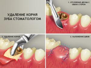Что делать, если зуб сломался, а в десне остался корень: можно ли восстановить зубную единицу? Что можно сделать, если зуб сломался, а корень остался в десне: полное удаление и восстановление