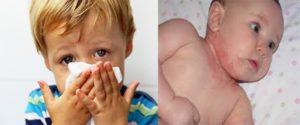 Непереносимость или аллергия на крахмал. Аллергия на картофельный крахмал