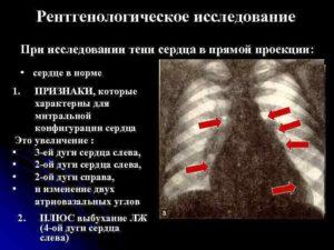 Тень сердца. Причины возникновения увеличенного сердца