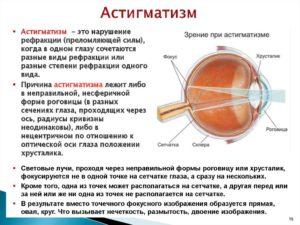 Нарушение зрения при котором происходит искажение изображения. Искривление линии зрения. Влияние глазных болезней