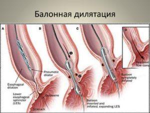 Эндоскопическая баллонная дилатация кардиального сфинктера. Нейромускулярные дисфункции пищевода Баллонная дилатация желудка