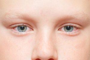 У ребенка красный глаз чем капать. Причины и лечение красных глаз у ребенка