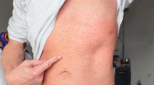 Причины, почему чешется тело без видимых признаков заболевания. Особенности зуда. Как прекратить сильный зуд