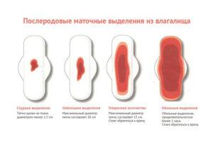 Лохии на второй неделе после родов. Выделения после родов у женщин