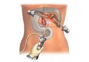Удаление желчных камней через рот последствия. Операция по удалению камней в желчном пузыре: показания, проведение, результат. Удаление через рот