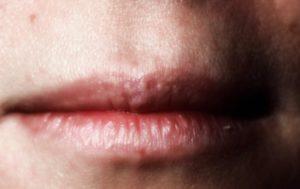 Белые пятна на губах. Что такое подкожные белые точки на губах? Причины и лечение