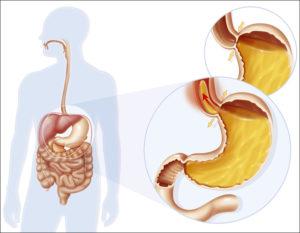 Как убрать газы из желудка. Газы в пищеварительном тракте. Медикаментозные методы терапии.