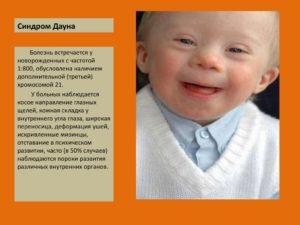Передается ли по наследству синдром дауна. Синдром дауна передается ли по наследству