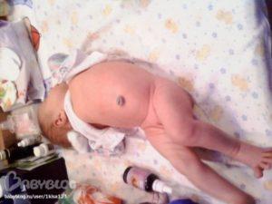 Сильное вздутие живота у новорожденных. Что делать при вздутии живота у новорожденного
