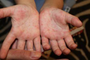 Энтеровирусная инфекция. Доктор комаровский об энтеровирусной инфекции у детей