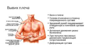 Вывих плечевого сустава локальный статус. Основные и абсолютные признаки вывиха Осложнения вывиха плеча