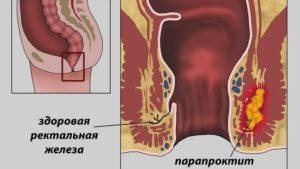 Парапроктит у новорожденных причины. Как проявляется парапроктит у маленьких детей до года