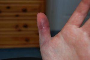 Почему посинела фаланга пальца на левой руке. Синеет и немеет большой палец на правой руке