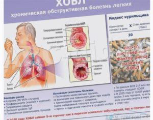 После бронхита болит грудная клетка посередине. Боль в груди после обструктивного бронхита. Жжение, боль в грудной клетке: посередине, в левой, правой части, причины, что делать