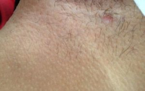 Шишка под кожей между ног. Подробно о причинах, видах и лечении шишки в паху у мужчин