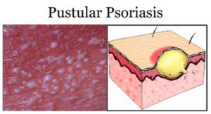 Пустулезный псориаз — что это такое, его симптомы и лечение. Генерализованный пустулезный псориаз, или синдром цумбуша