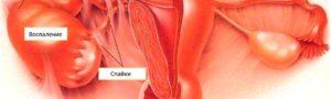 Возможно ли забеременеть после воспаления яичника. После воспаления придатков возможно забеременеть. Возможно ли зачатие. Симптомы и лечение