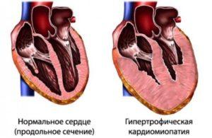 Большое сердце болезнь лечение. Диагноз большое сердце что это такое. Причины роста размеров сердца