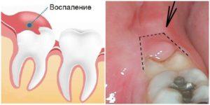 Зуб мудрости при беременности режется и болит: что делать. Режется зуб мудрости во время беременности. Что делать и чем лечить
