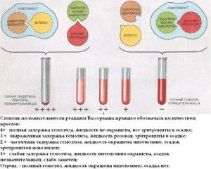 Антиген для реакции вассермана как применяется. Кровь на реакцию вассермана. Когда требуется проведение диагностики