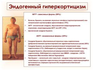 Экзогенный гиперкортицизм лечение. Эндогенный гиперкортицизм. Симптомы синдрома Кушинга