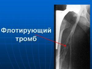 Что такое флотирующий тромб. Описание патологии и методы лечения флотирующего тромба Флотирующий тромб. Лечение флотирующего тромба