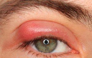 Пекут глаза причины и лечение у взрослых. Пекут глаза: что делать