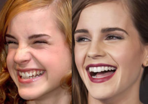 Американцы-американцы, зачем вам такие белые зубы? Почему у американцев такие белые зубы почти у всех? Почему у блоггеров белые зубы