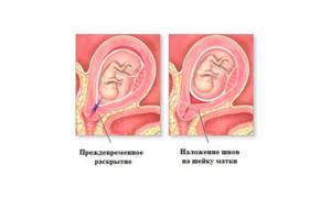 Наложение шва на шейку матки при беременности. Все, что необходимо знать о наложении швов на шейку матки при беременности