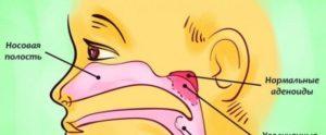 Что делать если у ребенка заложен нос и текут сопли? У ребенка постоянно заложен нос и сопли что делать