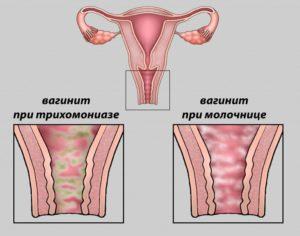 Чем опасен атрофический кольпит у женщин. Какие недорогие свечи лучше применять от кольпита. Причины развития кольпита