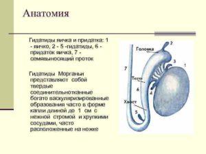 Гидатида яичка у детей. Гидатида яичка