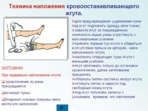 На какой срок может быть наложен кровоостанавливающий жгут. Правила наложения кровоостанавливающего жгута