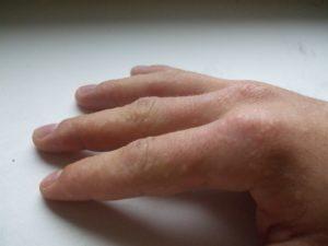 Опухли пальцы на руках и чешутся: причины. Аллергия на руках: виды, симптомы и лечение