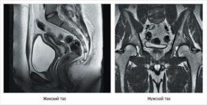 Особенности мрт малого таза у мужчин и подготовка к ней. Что показывает МРТ органов малого таза у мужчин? Показания к проведению томографии малого таза у мужчин