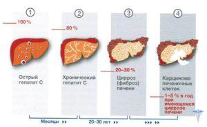 Гепатит С — как передается, симптомы, первые признаки, осложнение, лечение и профилактика гепатита Ц. Влияет ли гепатит с на потенцию Гепатит с на что влияет