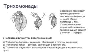 Трихомонадный простатит: откуда берутся трихомонады в простате и как от них избавиться? Трихомонадный простатит