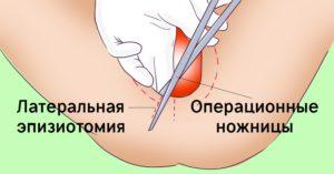 Не заживает шов после эпизиотомии. Эпизиотомия. Швы после эпизиотомии: описание, внешний вид и лечение
