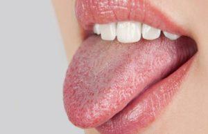 Щиплет во рту и губы. Жар во рту причины. Стоматологические причины ощущения жжения во рту