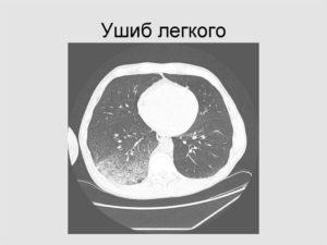 Лечение повреждений легких. Сильный ушиб легкого: симптомы и лечение
