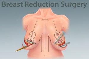 Восстановление после подтяжки грудных желез без имплантов. Подтяжка груди с помощью операции. За и против хирургической подтяжки груди. К особенностям операции относятся