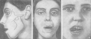 Челюсть сошла с места что делать. Вывих челюсти: Симптоматика и лечебная тактика. Причины возникновения вывихов нижней челюсти