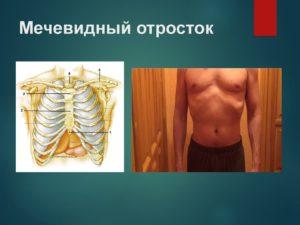 Грыжа мечевидного отростка грудины симптомы. Мечевидный отросток грудины увеличился - как быть