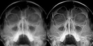 Флюорография носовых пазух. Что показывает рентген носа? Важные симптомы, на которые следует обратить внимание